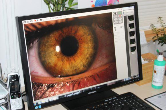 Zentrum für gesundes Sehen in Falkensee: Tränenfilmanalyse